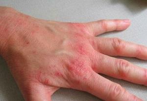 Экодакс крем побочные реакции