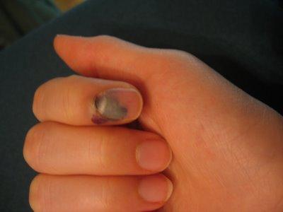 Гнойная рана вид