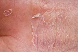 Шелушение на коже