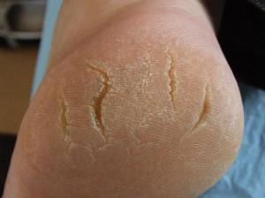 Трещины на пятках
