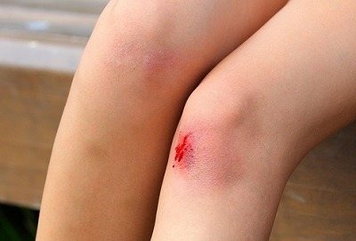 Рана на коленке