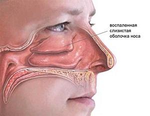 Ринит- воспаление слизистой носа