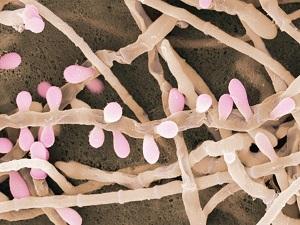 Дактарин гель от грибка Trichophyton rubrum.