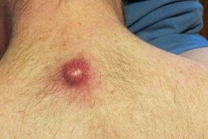 Причины фурункулеза