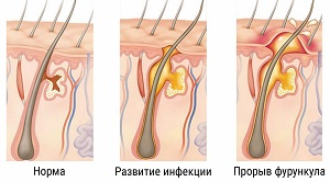 Симптомы фурункулеза