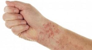 Побочные явления от Аллергодерм мази
