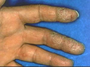Некротический контактный дерматит