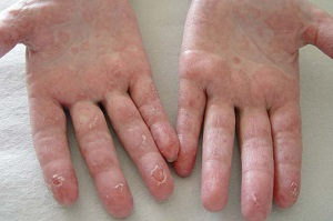 Ксероз кожи рук