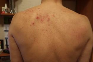 Карбункулы на спине