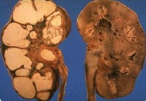 Признаки туберкулезного папиллита