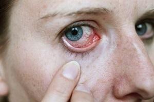 Симптомы папиллита глаза