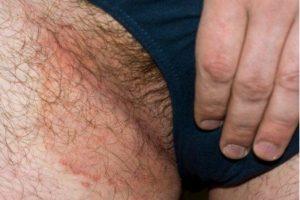 Эпидермофитоз паховой области