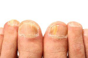Эпидермофитоз на ногтях