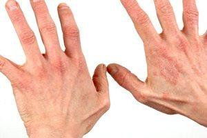 Экзифин гель побочные эффекты