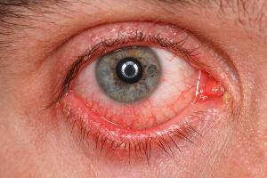 Клензит гель побочные реакции