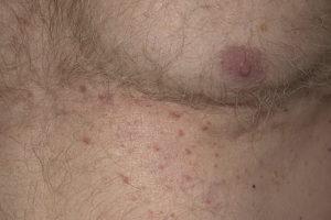 Дерматоз при заболевании щитовидной железы