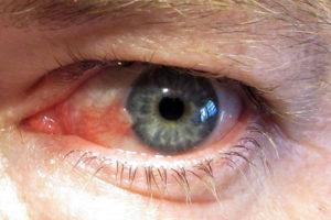 Офтальмологические средства показания
