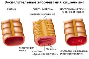 Воспаление прямой кишки