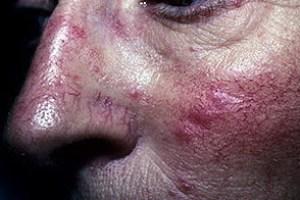 Системная красная волчанка симптомы