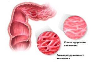 Воспаление прямой кишки симптомы