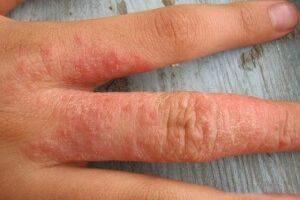 Бетазон крем от дерматита