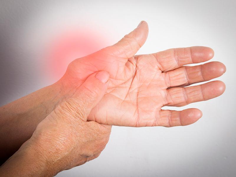 Лечение артрита народными средствами причины