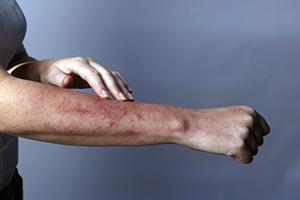 Синодерм крем против аллергии