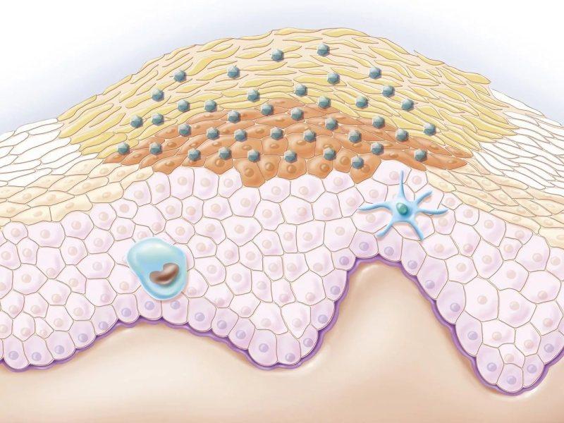 Кондиломы остроконечные стадии