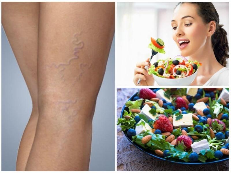 Как лечить варикоз диета