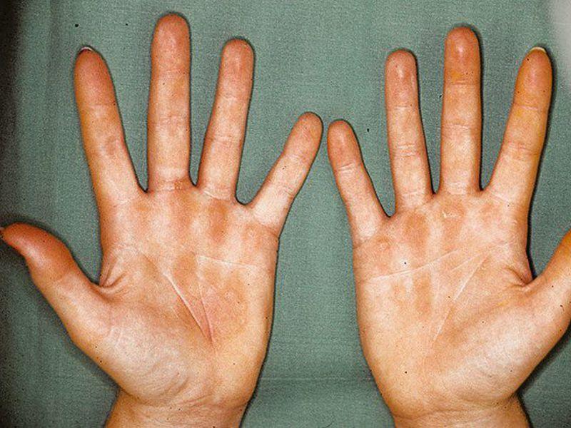 Унидерм крем от дерматита
