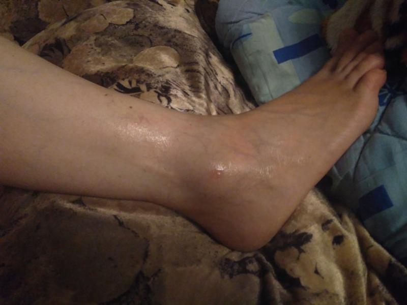 Финалгель при травме лодыжки