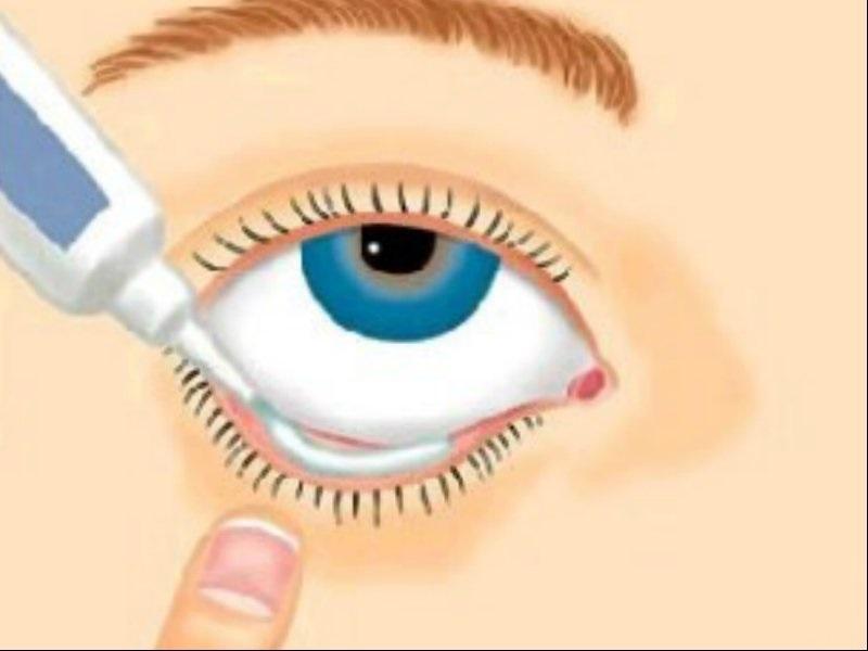Солкосерил глазной гель применение