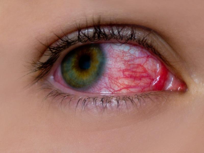 Солкосерил глазной гель при конъюнктивите