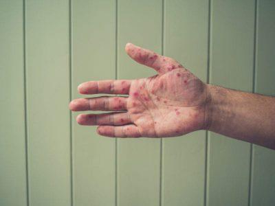 Дермадрин крем побочные реакции