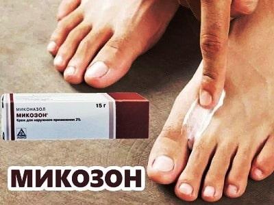 Микозон крем использование