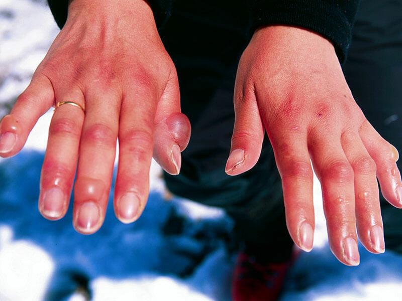 Волдыри на пальцах