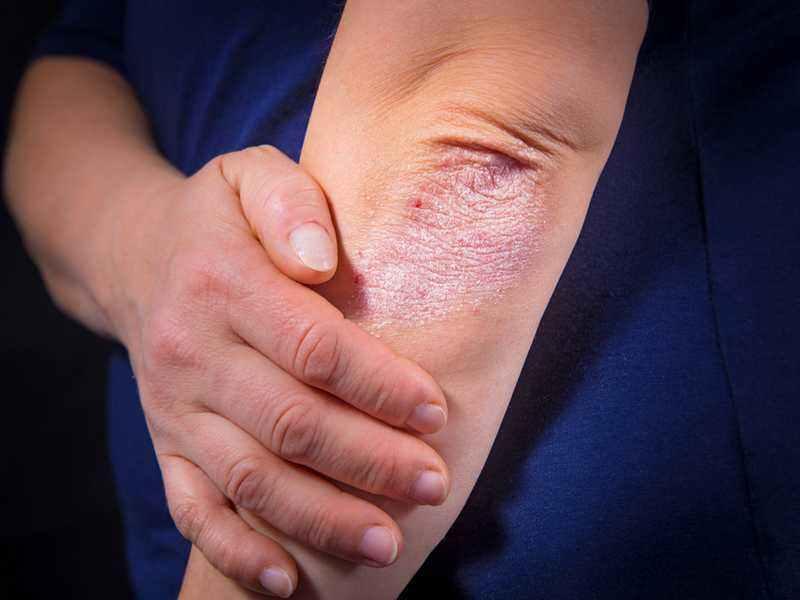Лечение псориаза Фторокортом