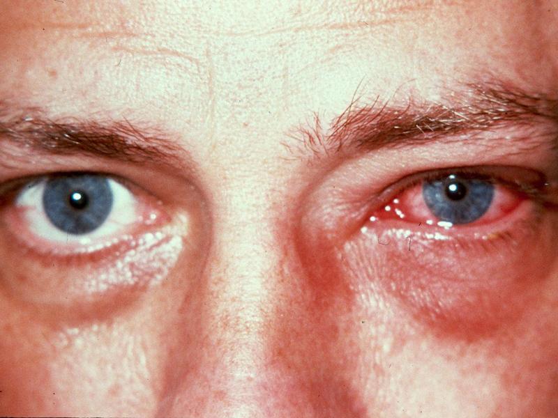 Колбиоцин мазь свойства