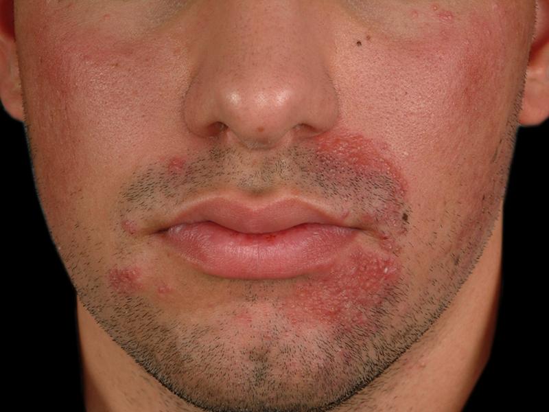 Периоральный дерматит лечение раствором Зеркалин