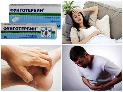 Фунготербин крем побочные реакции