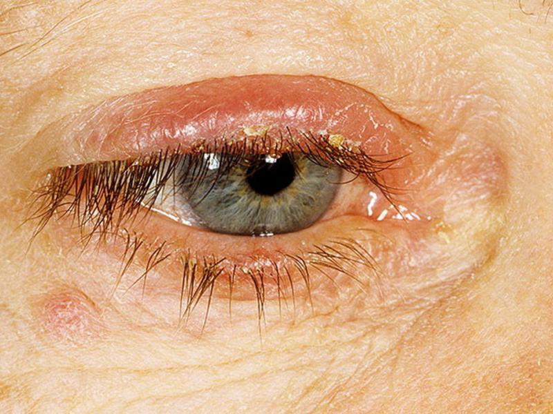 Декса гентамицин глазная мазь показания