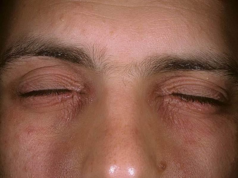 Декса гентамицин побочные эффекты