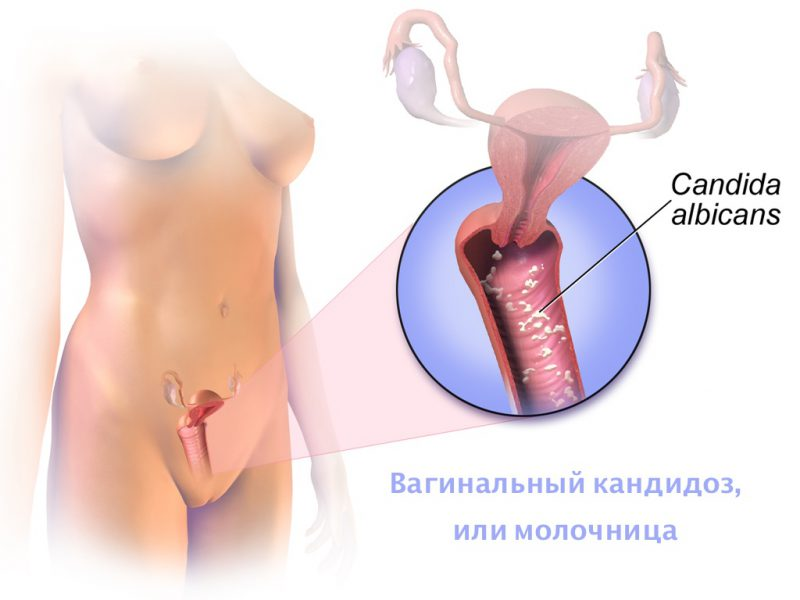 Гинофорт крем что это