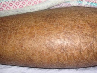 Шелушение кожи виды