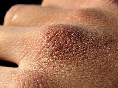 Шелушение кожи что это