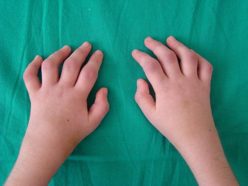 Детский полиартрит