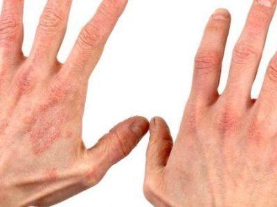 Зуд между пальцами что это
