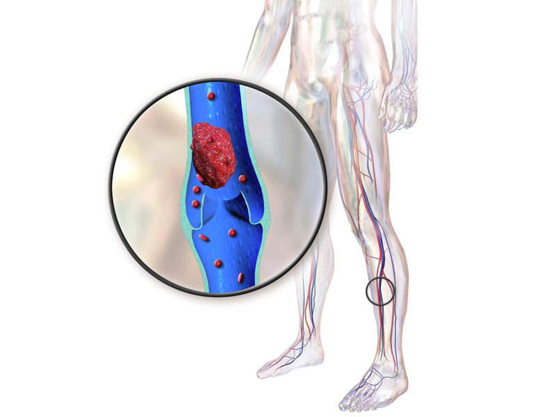 Лиотромб фармакологические свойства препарата