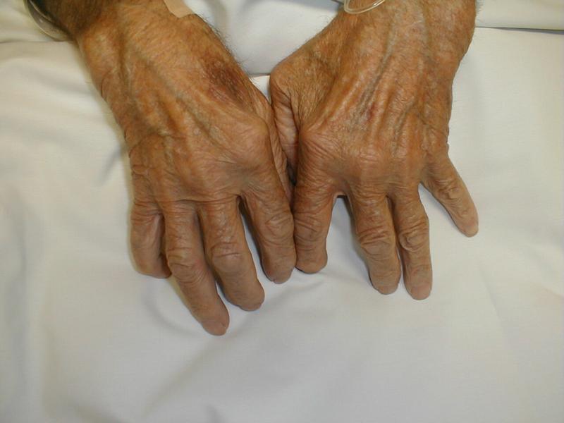 Ревматоидный артрит что это