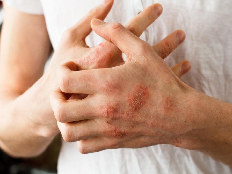 Симптомы зболевания